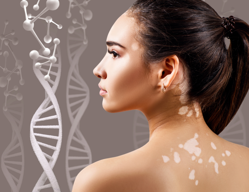 What You Need To Know About Vitiligo The Vitiligo Society
